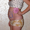 УЗИ  на 20 неделе беременности. Фото
