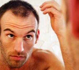 Причины облысения у мужчин