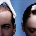Причины выпадения волос тест все ли впорядке с волосами