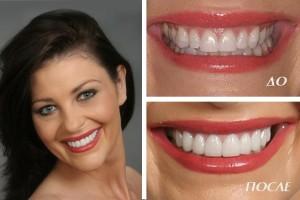 виниры для красивых зубов фото