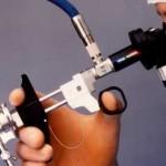 гитероскопия в гинекологии